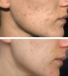 After 3 AlumierMD Chemical Peels