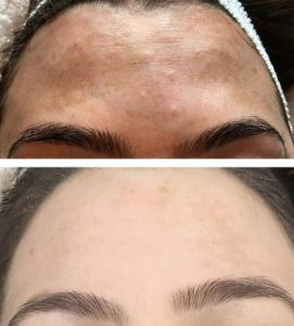 After 4 AlumierMD Chemical Peels