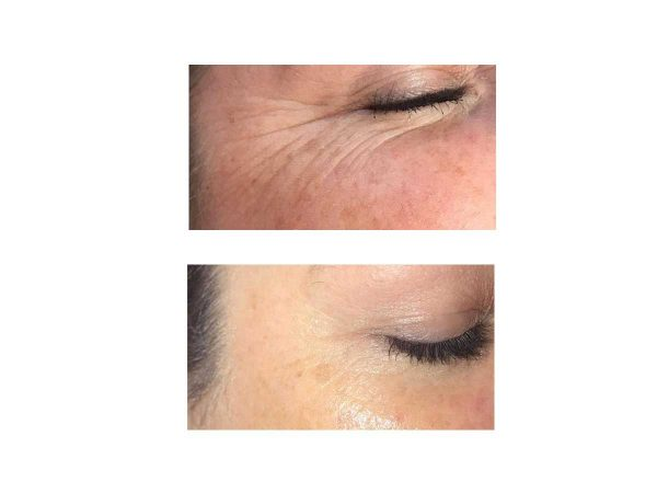 Crows Feet Before and After - Sunekos
