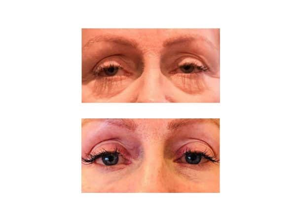 Baggy Eyes Before and After - Tear Trough Filler
