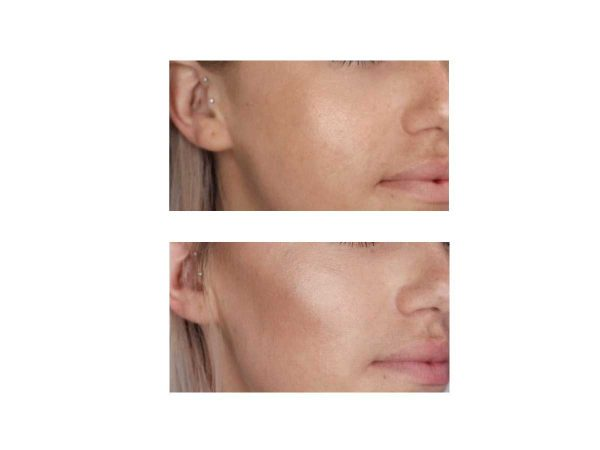 Cheek Fillers at VL Aesthetics