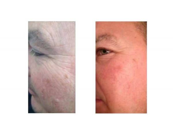 Skinade Before & After - 40 Days