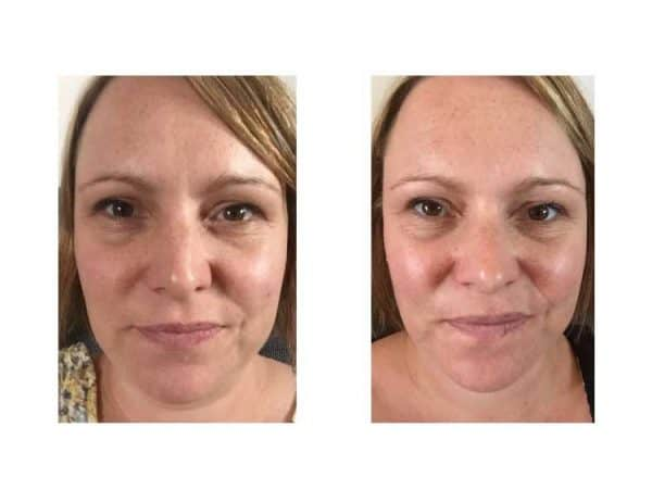 Skinade Before & After - 10 Days