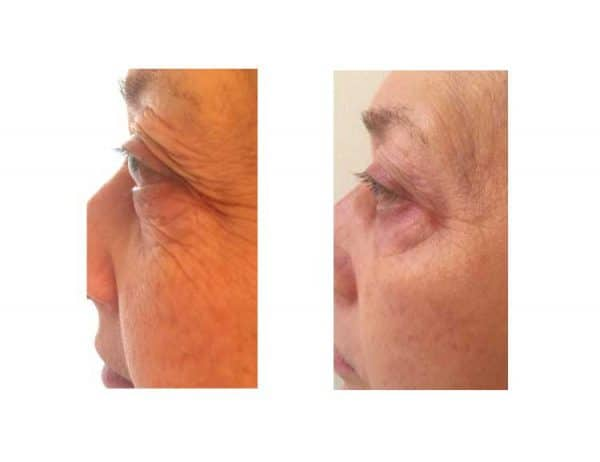 Skinade Before & After - 50 Days