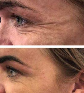 After 1 AlumierMD Medical Facial