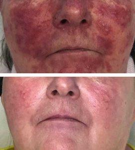 After 6 AlumierMD Medical Facials