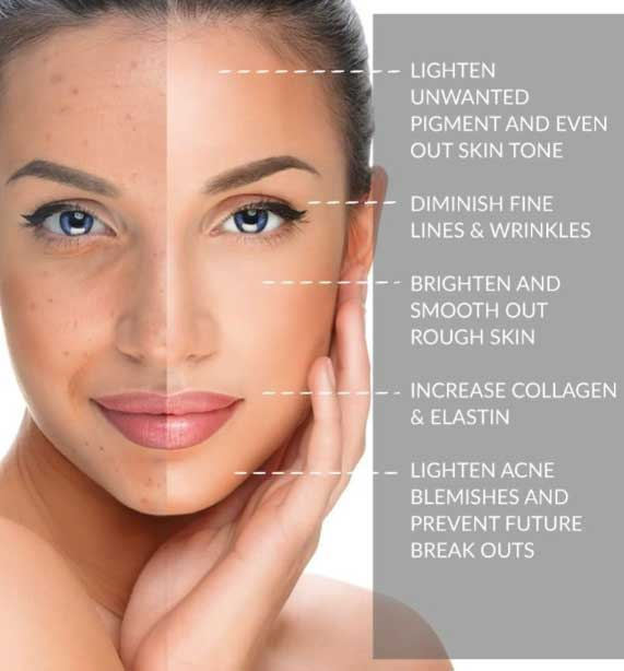 Medical Facials Carlisle - VL Aesthetics