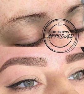 HD Brows Before After at VL Aesthetics