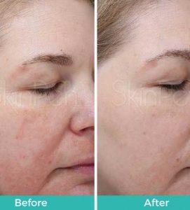 After 3 SkinPen Treatments at VL Aesthetics