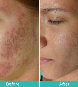After 6 SkinPen Treatments at VL Aesthetics