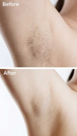 After 1 Laser Hair Removal Treatment at VL Aesthetics