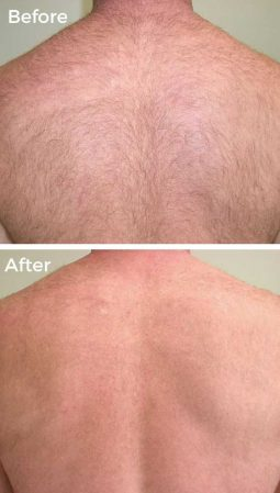 After 2 Laser Hair Removal Treatments at VL Aesthetics