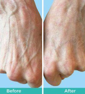 After 2 SkinPen Treatments at VL Aesthetics