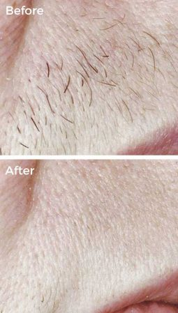 After 3 Laser Hair Removal Treatments at VL Aesthetics