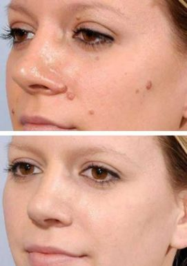 Skin Tag Removal Carlisle - CryoPen - VL Aesthetics