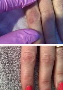 A woman quickly curing a wart on her hand at VL Aesthetics in Carlisle (Cumbria)