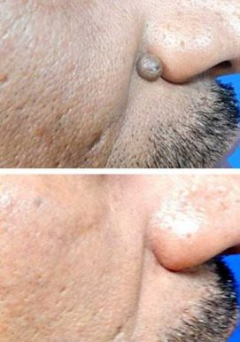 A man quickly removing a wart on his nose using cryotherapy (liquid nitrogen) – VL Aesthetics (Carlisle, Cumbria)
