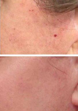 Cherry Angioma Removal Carlisle - CryoPen - VL Aesthetics