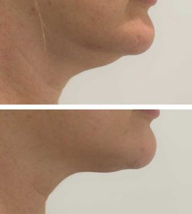 A woman getting rid of her double chin fast at VL Aesthetics