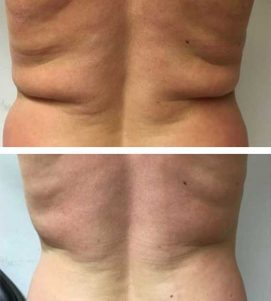 Someone quickly removing their back fat at VL Aesthetics