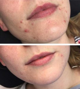 A woman getting rid of acne and rosacea with Dermalux LED blue light therapy facials – VL Aesthetics (Carlisle, Cumbria)