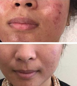A woman getting rid of acne and rosacea with Dermalux LED blue light therapy treatments – VL Aesthetics in Carlisle (Cumbria)