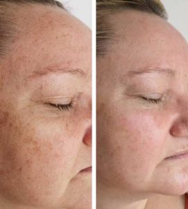 A woman quickly getting rid of pigmentation and age spots with Dermalux red light (infrared) treatment at VL Aesthetics in Carlisle (Cumbria)