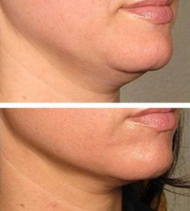 A woman reducing her neck fat at VL Aesthetics