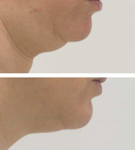 A woman removing her double chin at VL Aesthetics