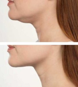 A woman getting rid of her neck fat quickly at VL Aesthetics