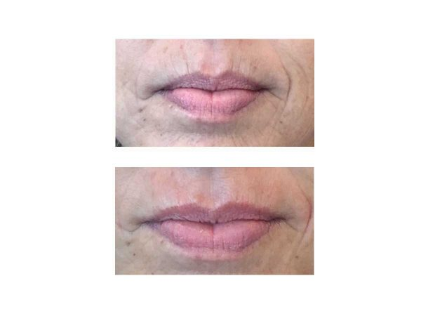 A before after photo of a woman getting rid of deep lines around her mouth at VL Aesthetics in Carlisle (Cumbria)