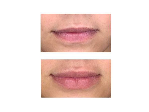 A before and after photo of 1ml Lip Fillers – VL Aesthetics in Carlisle (Cumbria)