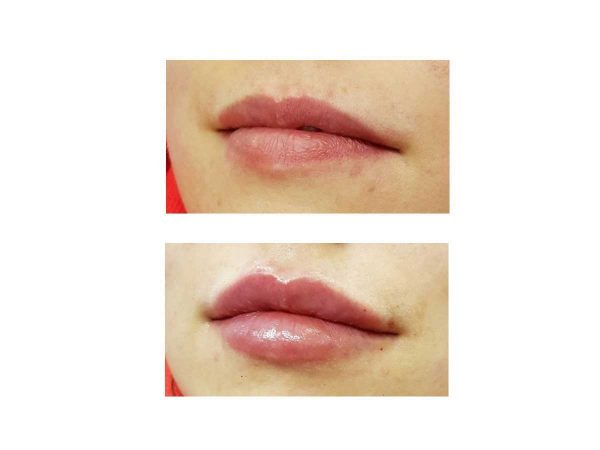 1ml Lip Fillers Before and After – VL Aesthetics in Carlisle (Cumbria)