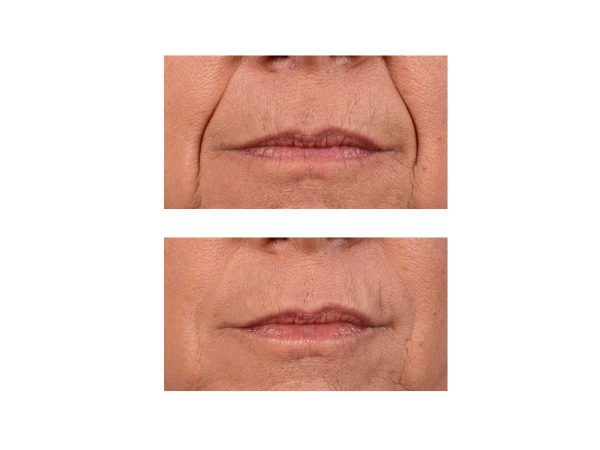 A before and after photo of Smile Lines Fillers at VL Aesthetics in Carlisle (Cumbria)