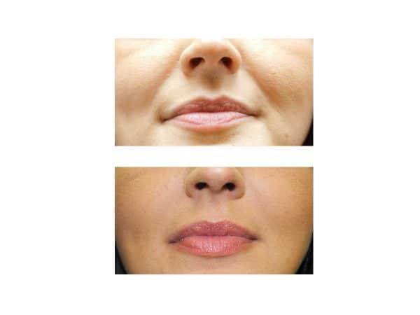 A before and after photo of Laugh Lines Fillers at VL Aesthetics in Carlisle (Cumbria)