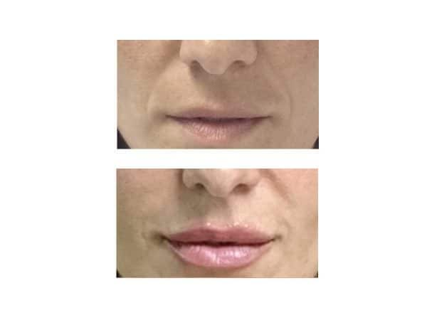 A before and after photo of a woman removing laugh lines at VL Aesthetics in Carlisle (Cumbria)