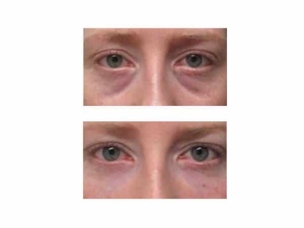 A before after photo of a woman getting rid of bags under her eyes with dermal fillers at VL Aesthetics in Carlisle (Cumbria)