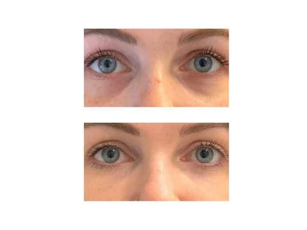 A before after photo of a woman getting under eye fillers at VL Aesthetics in Carlisle (Cumbria)