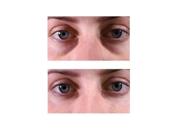 A before after photo of a woman getting rid of under eye hollows at VL Aesthetics in Carlisle (Cumbria)