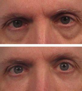 A man getting rid of under eye circles at VL Aesthetics in Carlisle (Cumbria)