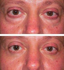 A man treating dark circles under eyes at VL Aesthetics in Carlisle (Cumbria)