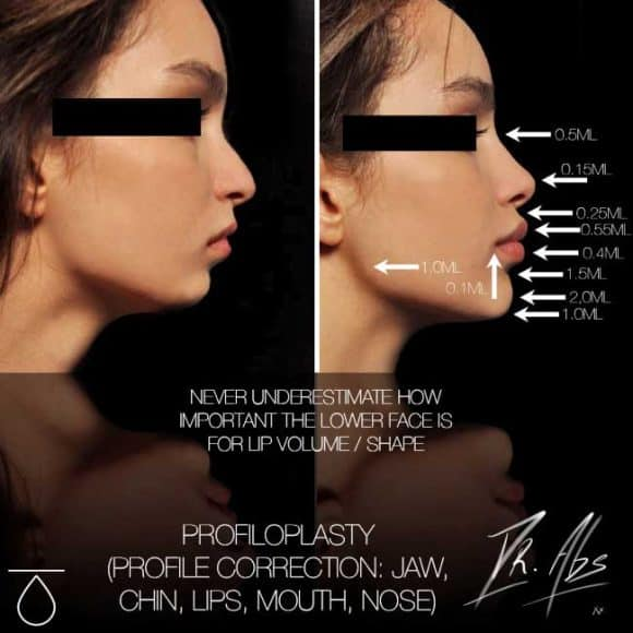 A before after of a Facelift to enhance lips, nose, chin, and jaw line – VL Aesthetics in Carlisle (Cumbria)