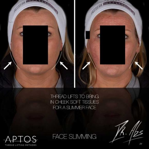 A before after of a thread lift to slim the face and soften skin - VL Aesthetics (Carlisle, Cumbria)