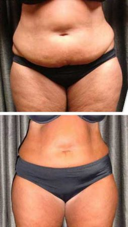 A woman quickly removing belly fat with the Emerald laser – VL Aesthetics (Carlisle, Cumbria)