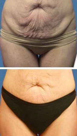 A woman getting rid of stomach cellulite fast with the Emerald laser – VL Aesthetics (Carlisle, Cumbria)