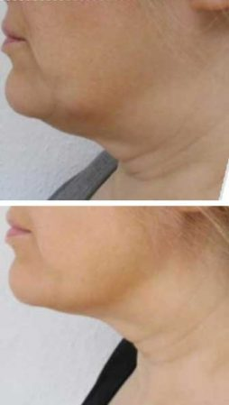 A woman quickly getting rid of a double chin with the Emerald laser – VL Aesthetics (Carlisle, Cumbria)