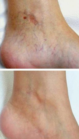 A before after photo of a man remove leg thread veins fast with the Cynosure laser