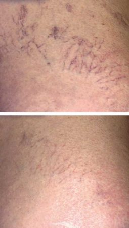A before after photo of a woman getting rid of spider veins quickly with the Cynosure laser